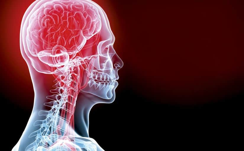 اعراض الجلطة الدماغية وكيفية تشخيصها مبكرا موسوعة