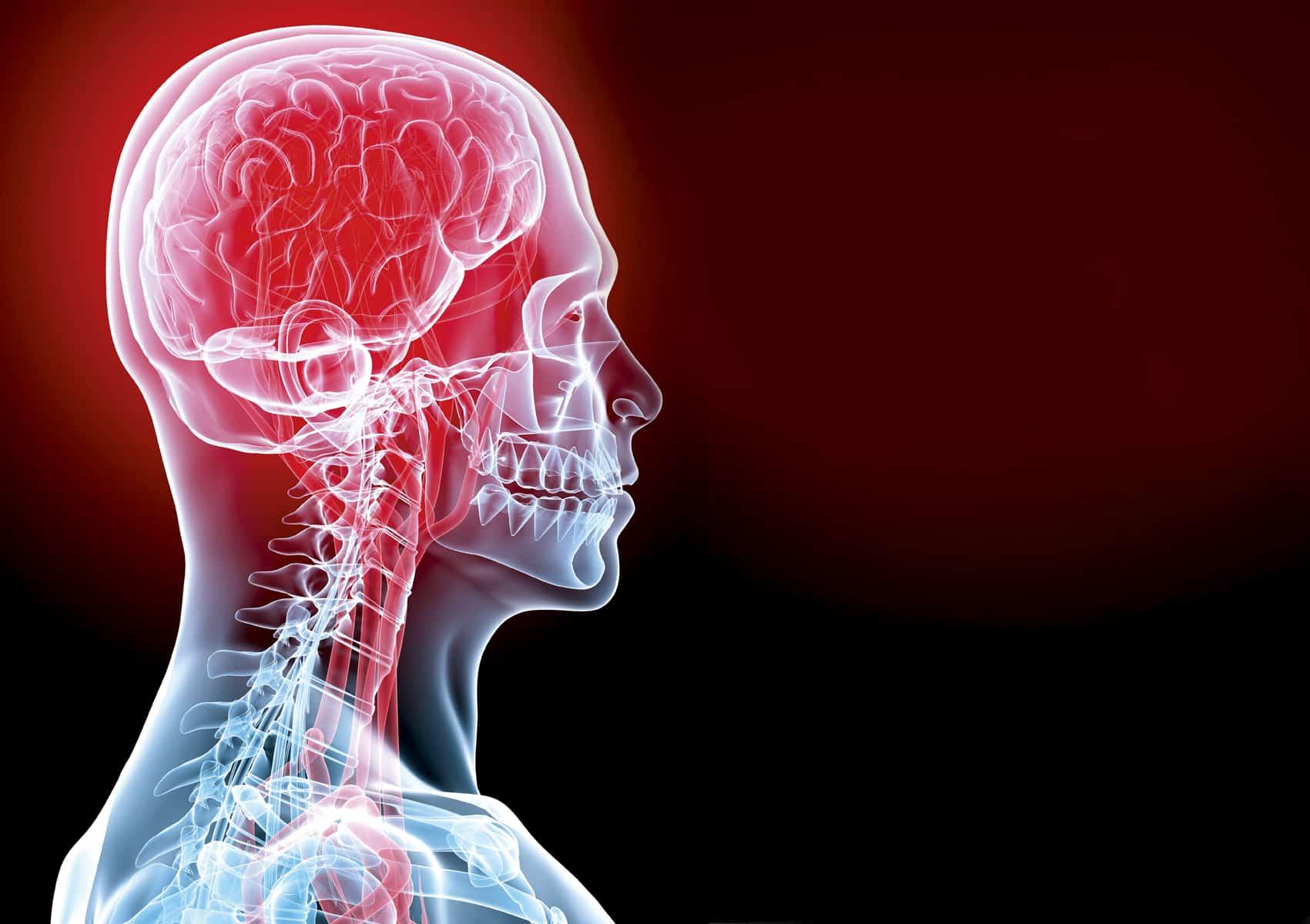 اعراض الجلطة الدماغية