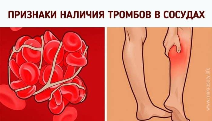 اعراض الجلطة الدموية