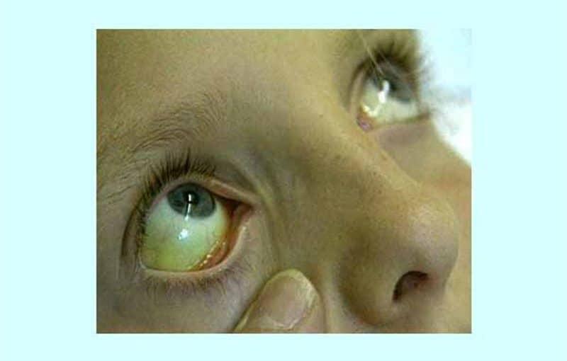 اعراض فيروس سي