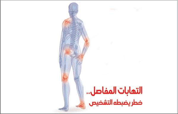 علاج التهاب مفصل الكوع بالاعشاب