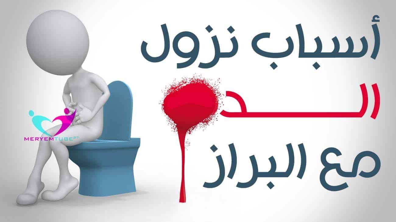 نزول دم مع البراز