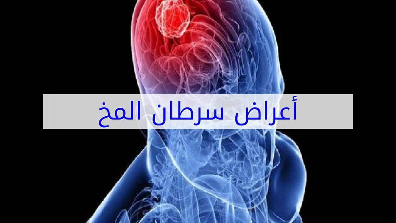 أعراض سرطان المخ وعلاجه موسوعة