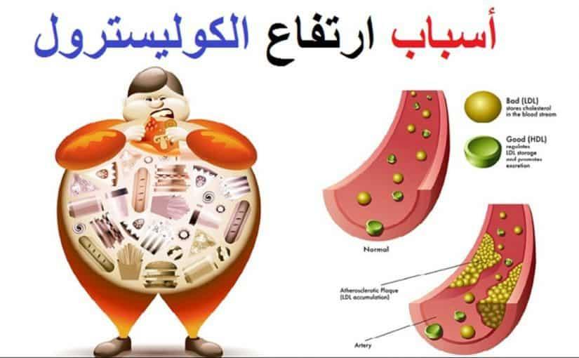 ما هو الكولسترول موسوعة