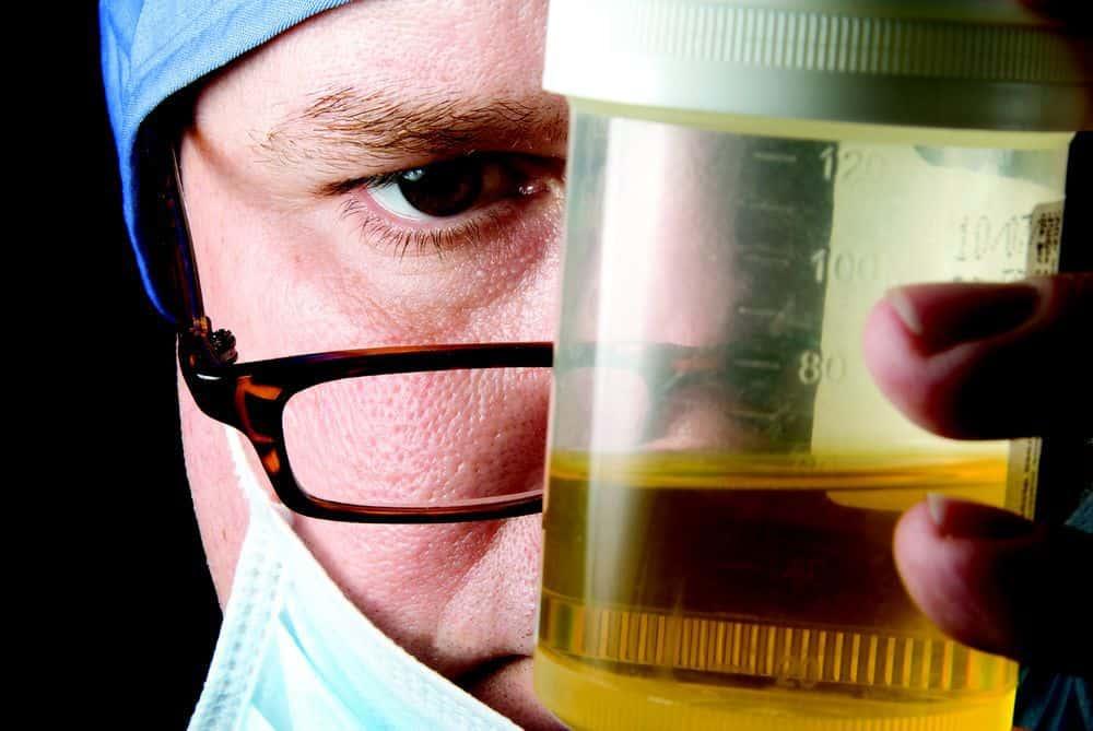 علاج صديد البول والأملاح