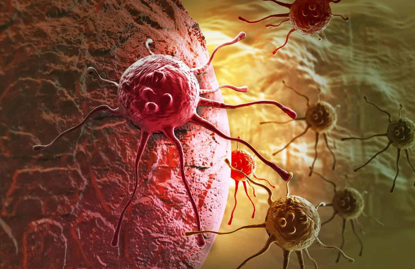 أعراض سرطان البنكرياس المنتشر