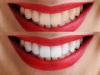 تبييض الأسنان بالزوم والبلازما وما هو افضل تبيض اسنان