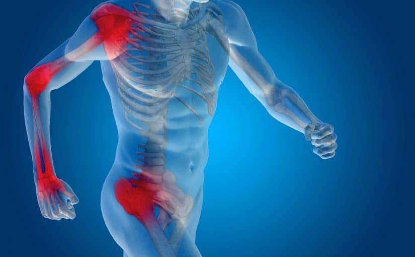 أدوية لعلاج التهاب العظام