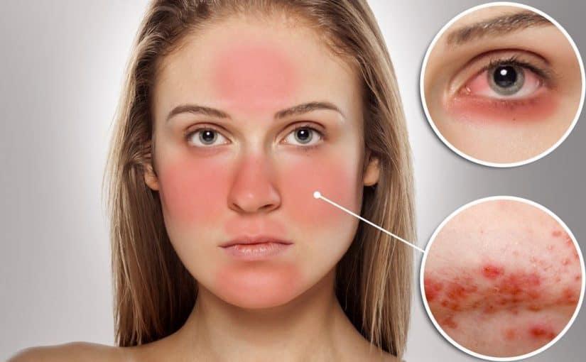 علاج حساسية الوجه