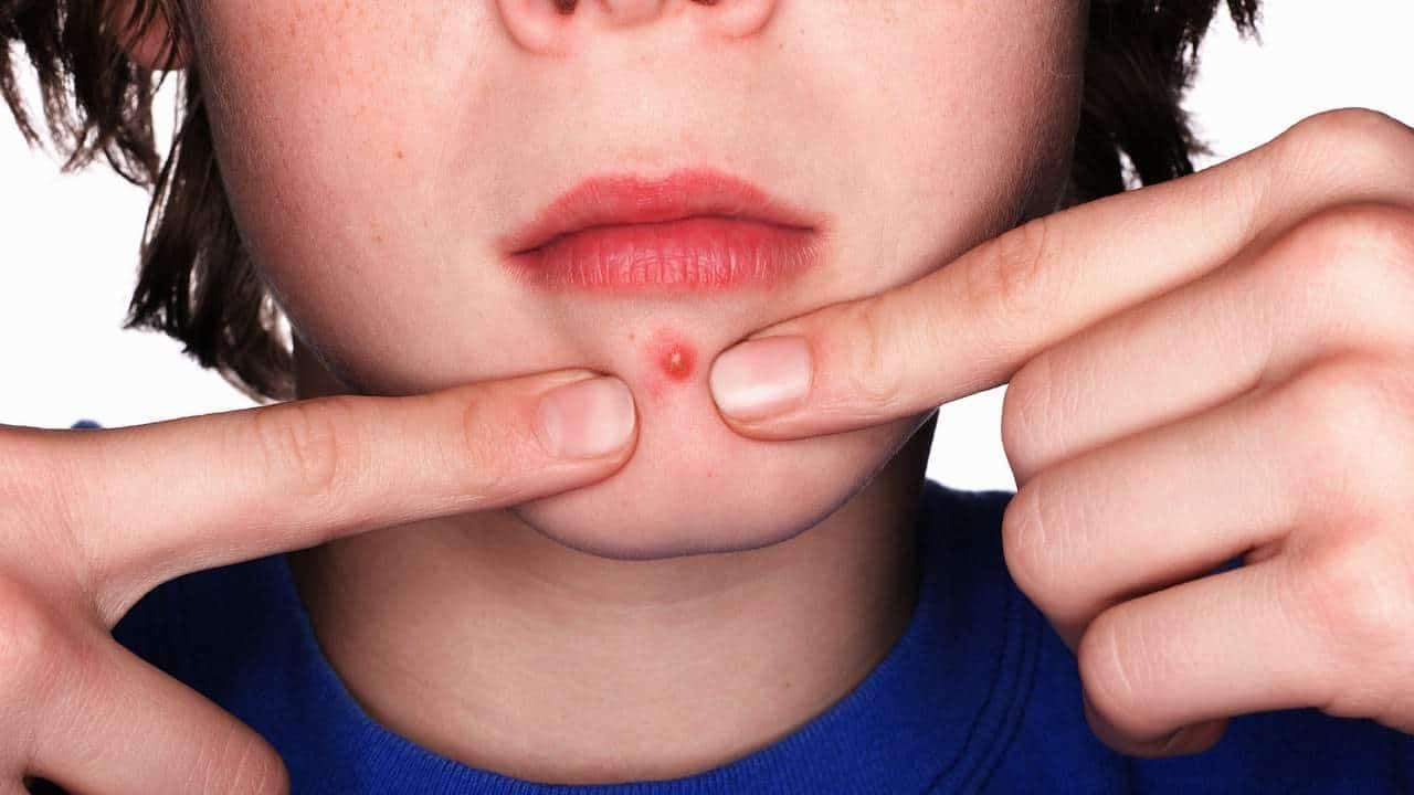 علاج الدمامل بدون راس