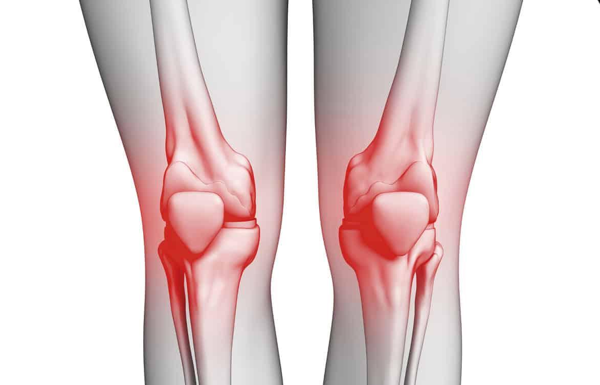 ea2c9bdb9 ما هو أسباب احتكاك الركبة وعلاجها ؟ - موسوعة