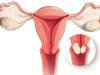 ما هي أسباب سرطان عنق الرحم ؟