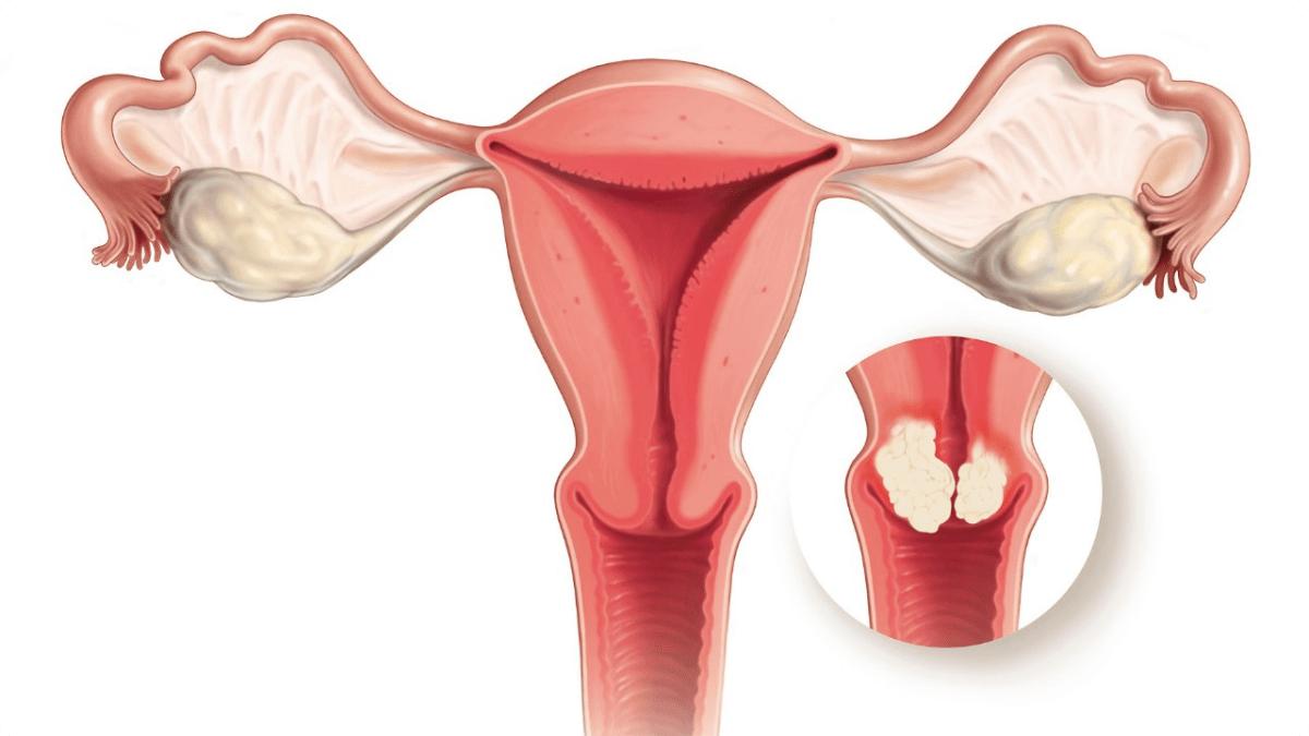 أسباب سرطان عنق الرحم