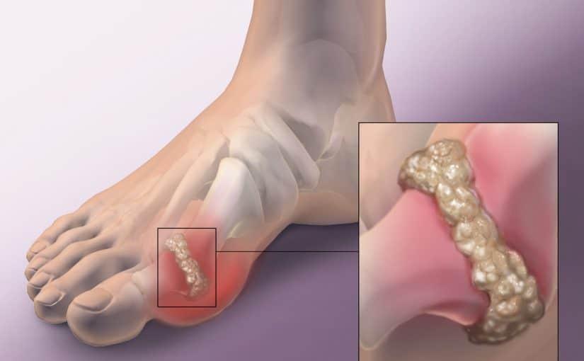 علاج التهاب المفاصل الحاد