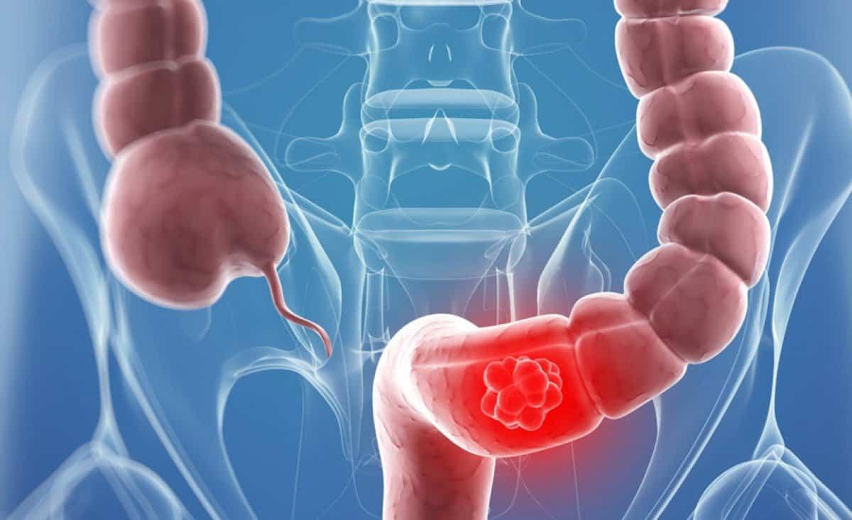 علاج القولون العصبي والغازات