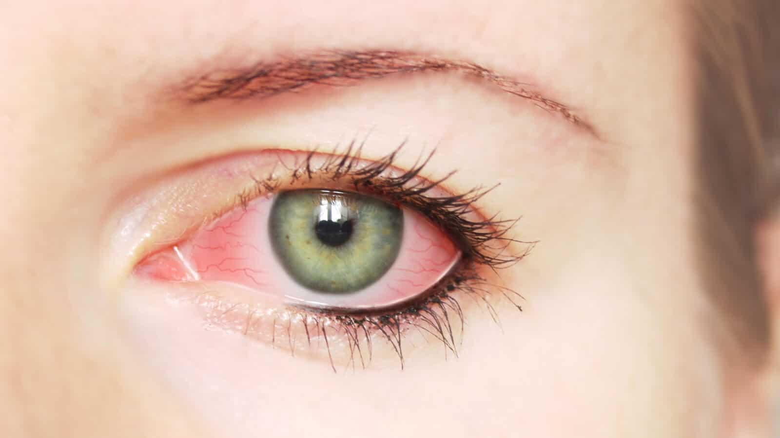 هل يوجد علاج نهائي لجفاف العين