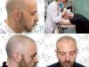 أفضل مركز لحل مشاكل الشعر في الرياض