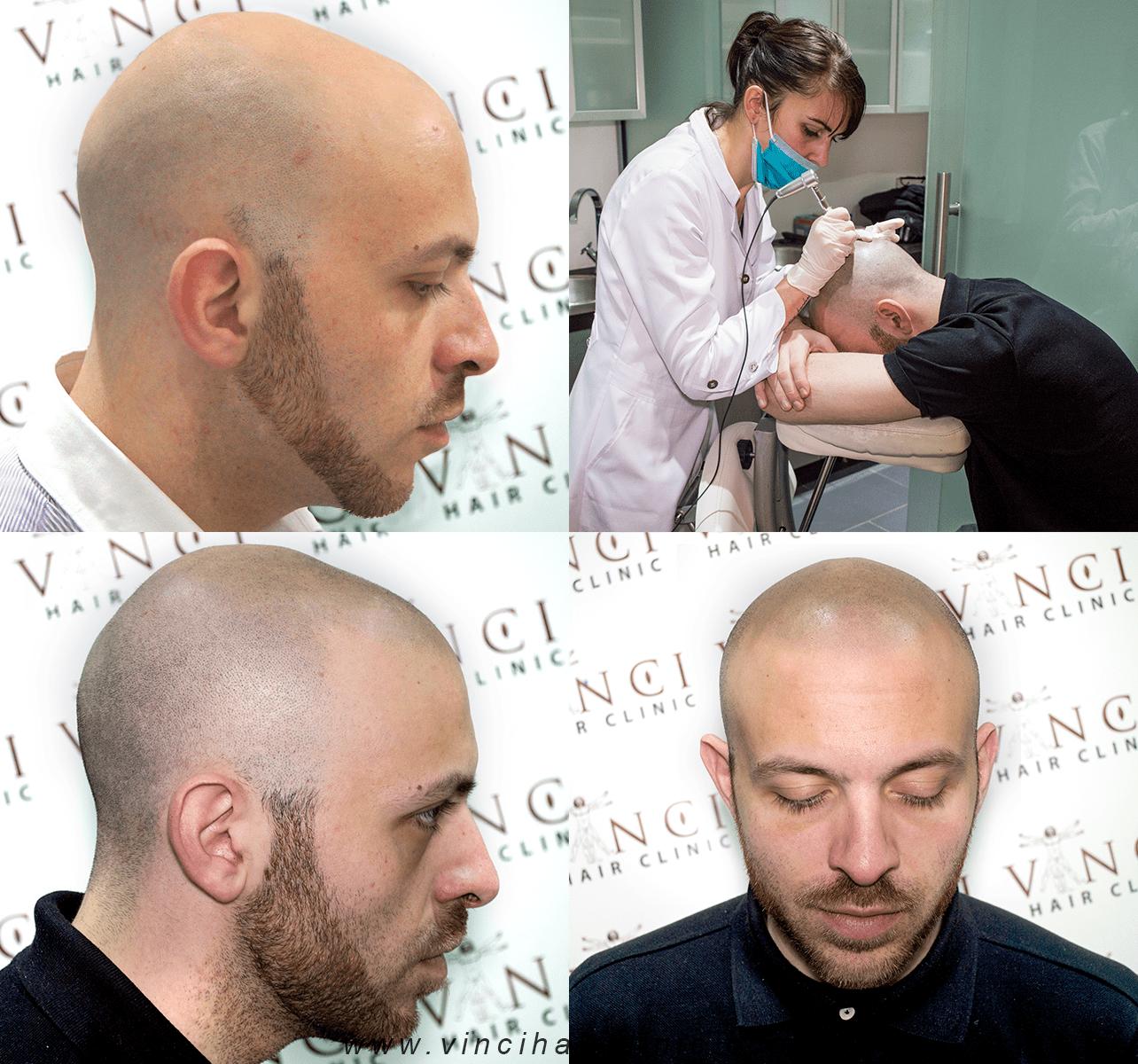 مركز لحل مشاكل الشعر في الرياض