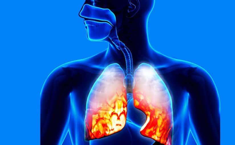 أعراض إلتهاب الرئة الحاد عند كبار السن وعلاجه - موسوعة