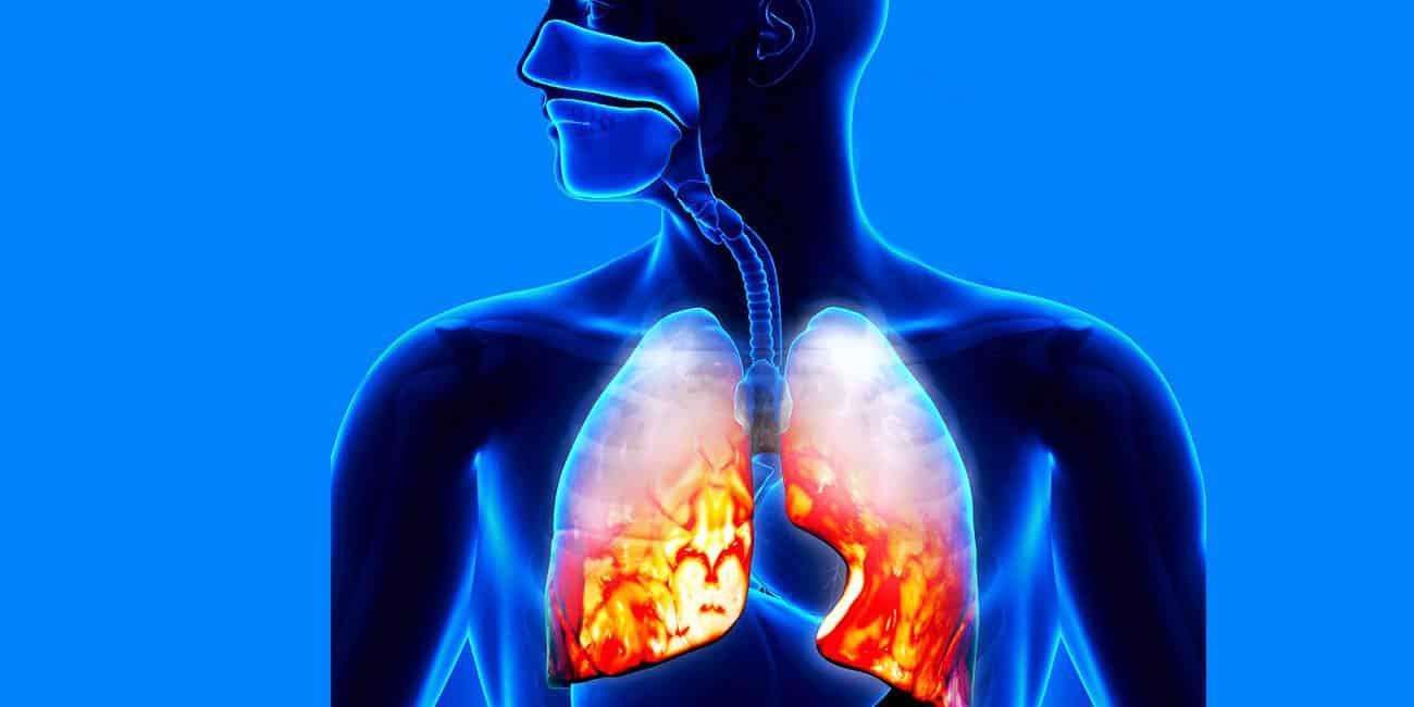إلتهاب الرئة الحاد عند كبار السن