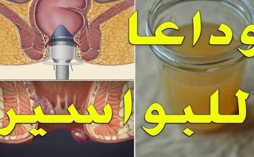 ادوية البواسير الداخلية