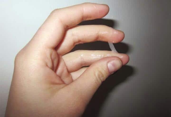 أنواع الإفرازات المهبلية