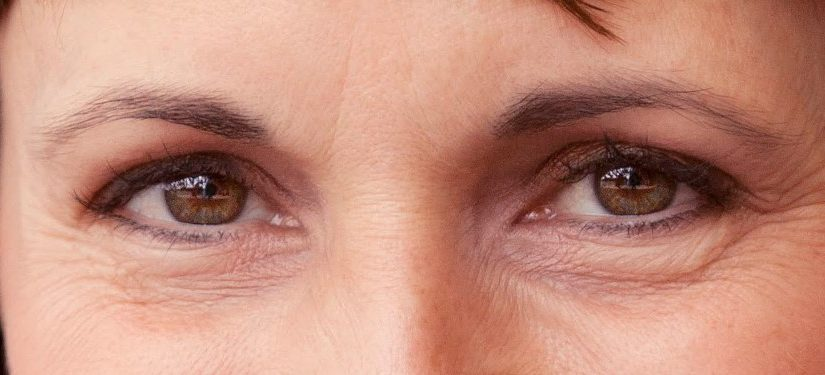علاج الخطوط تحت العين
