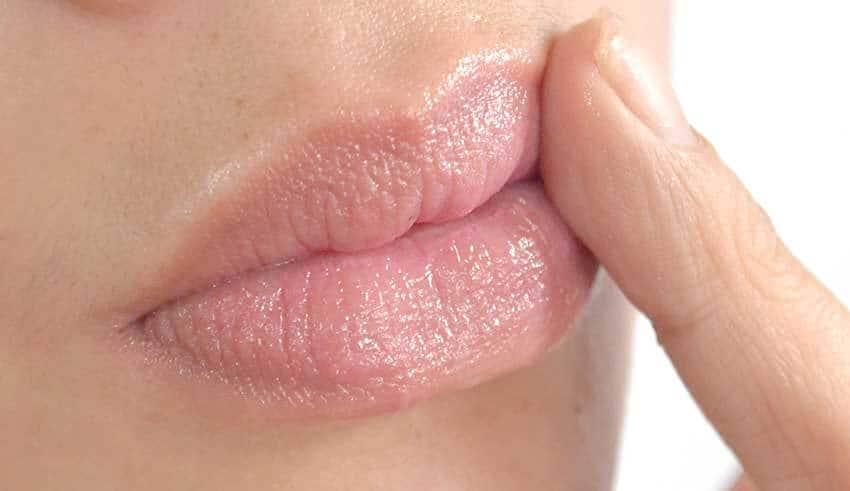 أسباب تشقق زوايا الفم