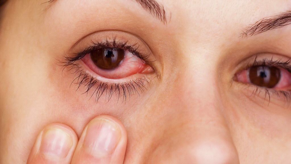 علاج حساسية العين القطرة سريعة المفعول موسوعة