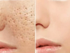 علاج حفر الوجه مجرب وسريع