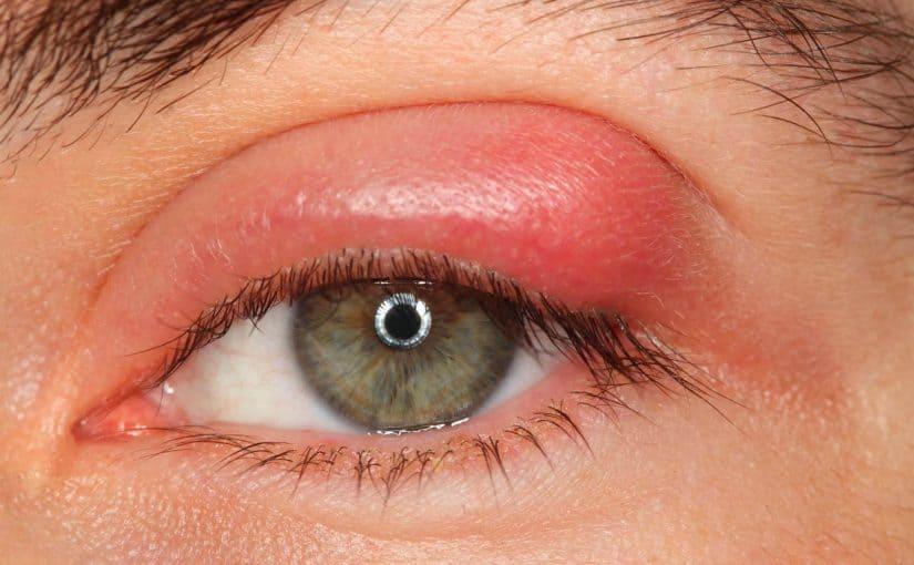 أسباب ظهور كيس دهني في العين وعلاجه موسوعة