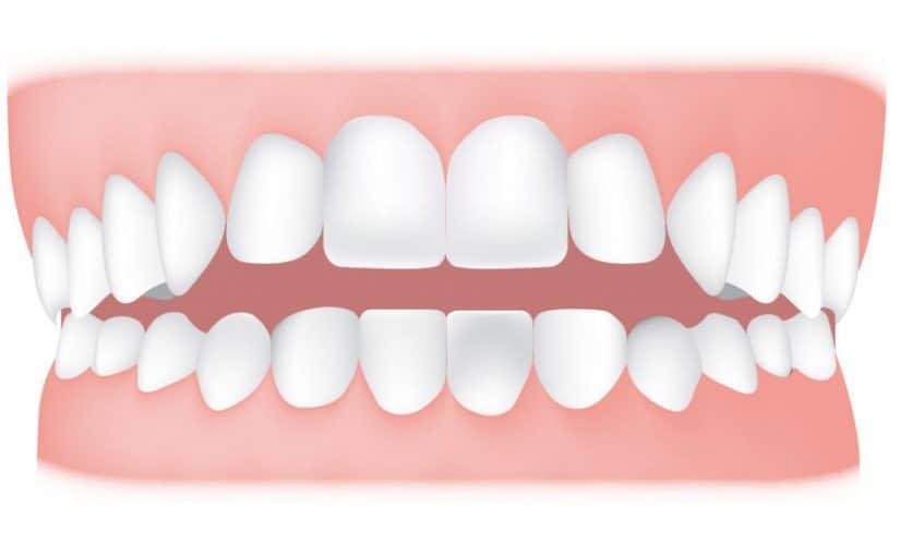 مطوية عن نظافة الأسنان مميزة ومفيدة موسوعة
