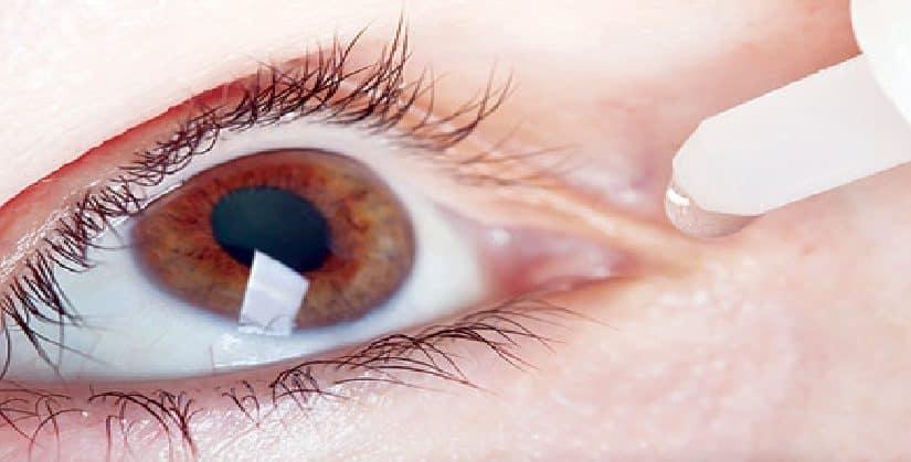 زيت الزيتون لجفاف العين