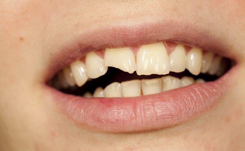 تفسير رؤية انكسار الأسنان فى الحلم