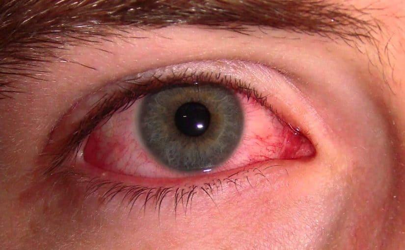 علاج جفاف العين للدكتور جابر القحطاني