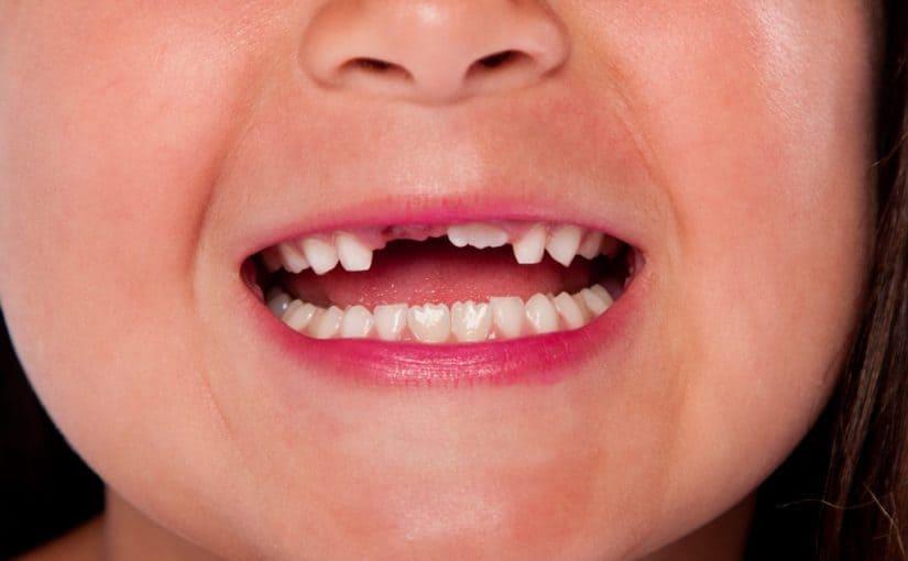 تفسير رؤيا تكسر الاسنان في الحلم معنى تفسير حلم تكسير الاسنان موسوعة