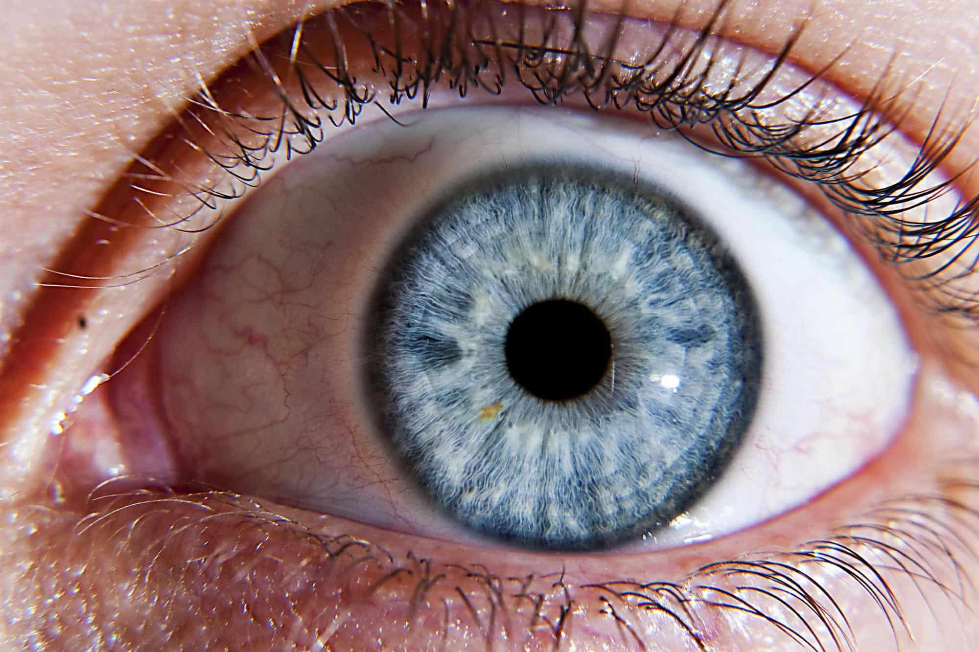 أعراض العين القويه