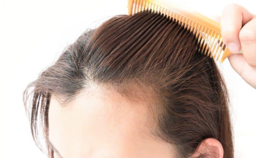 اقوى علاج لتساقط الشعر