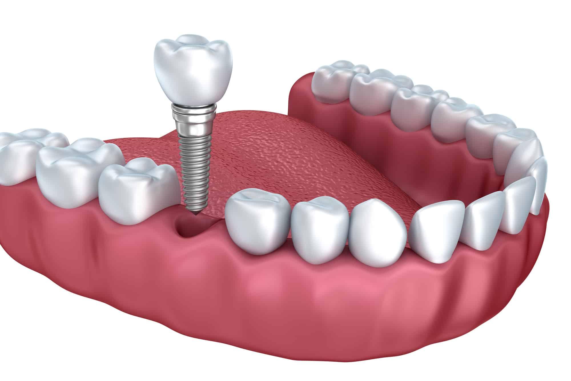 تجربتي مع زراعة الاسنان موسوعة