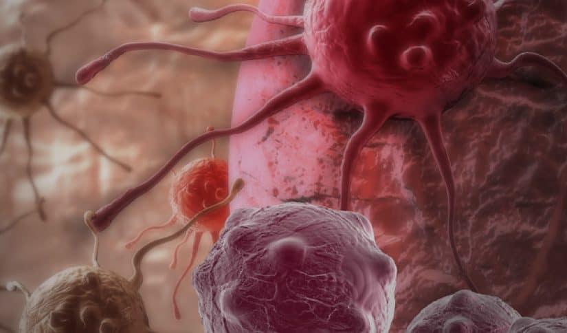 هل سرطان الدم خطير