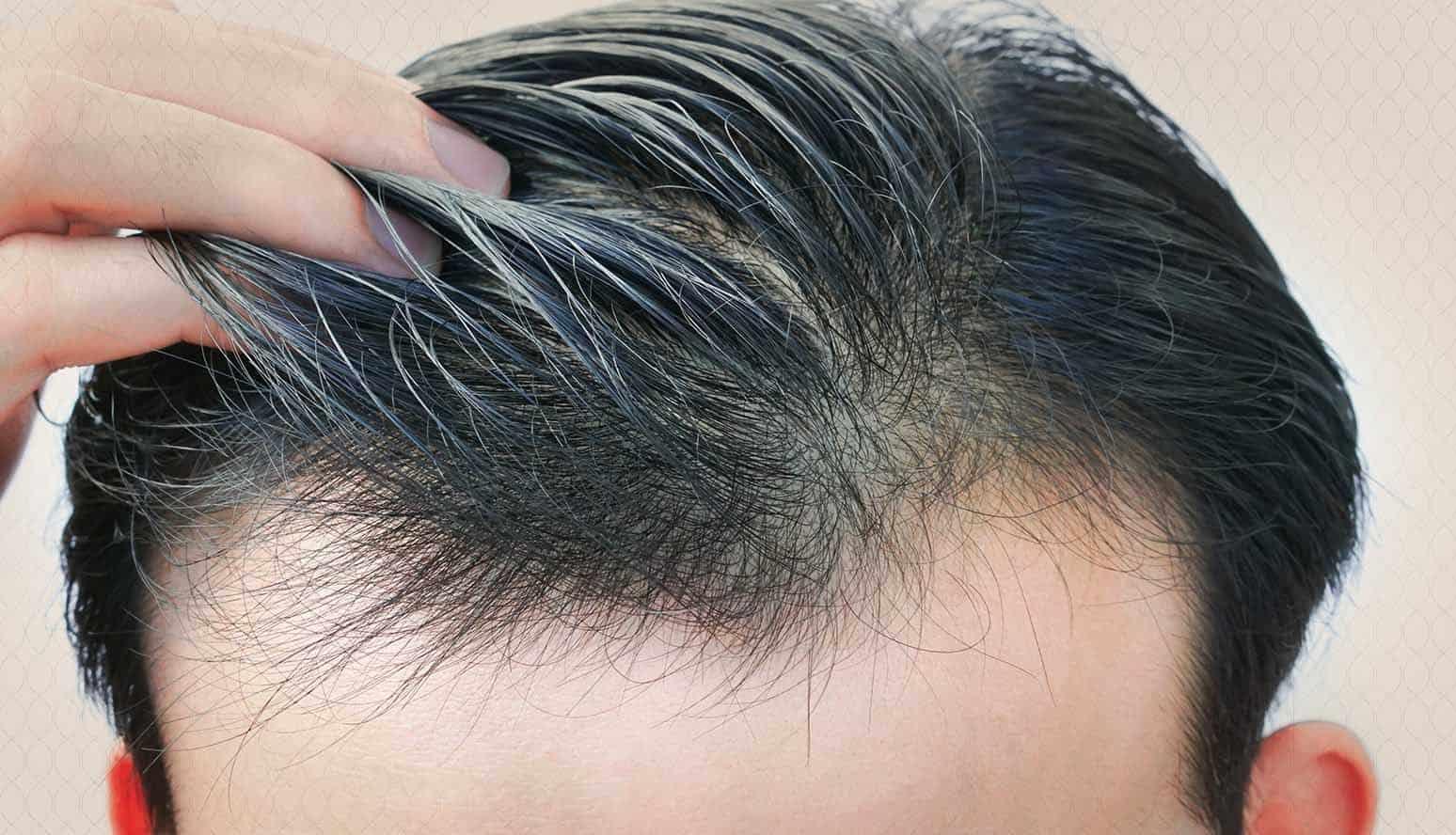 زراعة الشعر في السعودية