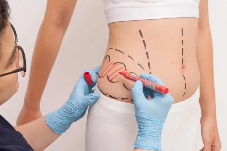 اسعار عمليات شفط الدهون في جدة