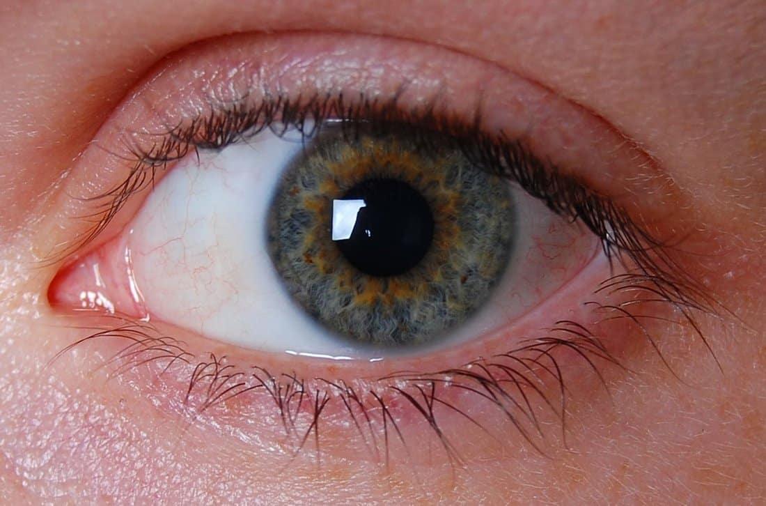 جفاف العين بعد الليزك