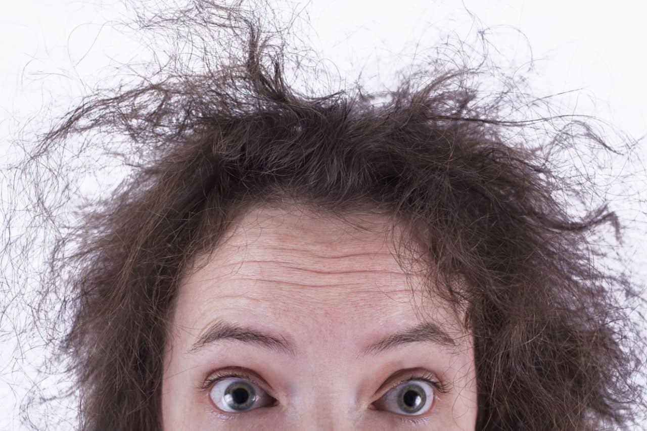 علاج تقصف الشعر من الأمام