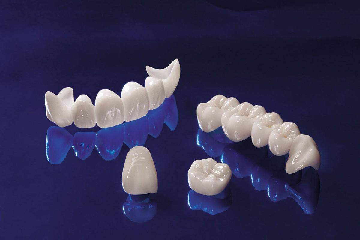 سقوط الاسنان في المنام للمتزوجة