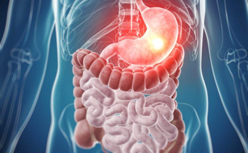 اعراض قرحة المعدة والقولون