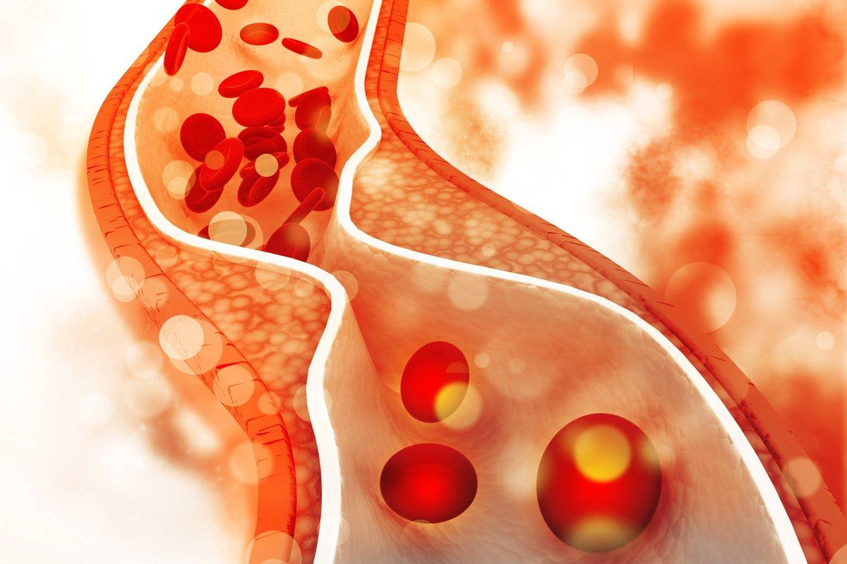 اعراض زيادة الكوليسترول