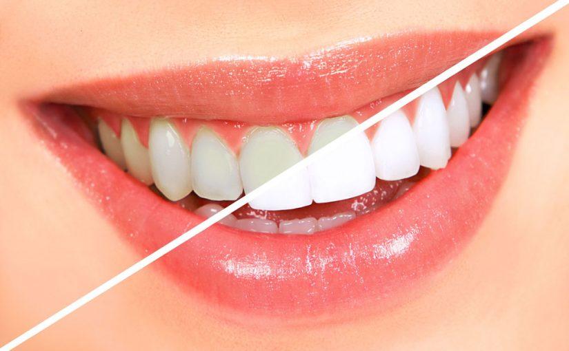 عيادة اسنان في الشارقة