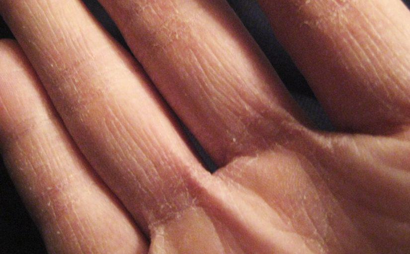 تخلصي من تشقق الأيدي فى فصل الشتاء