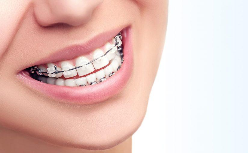 نادم صغير بشري اشكال تقويم الاسنان Plasto Tech Com